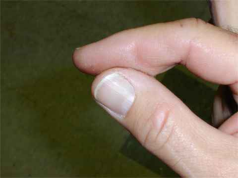 Someone There Who Hands Super Glued Together